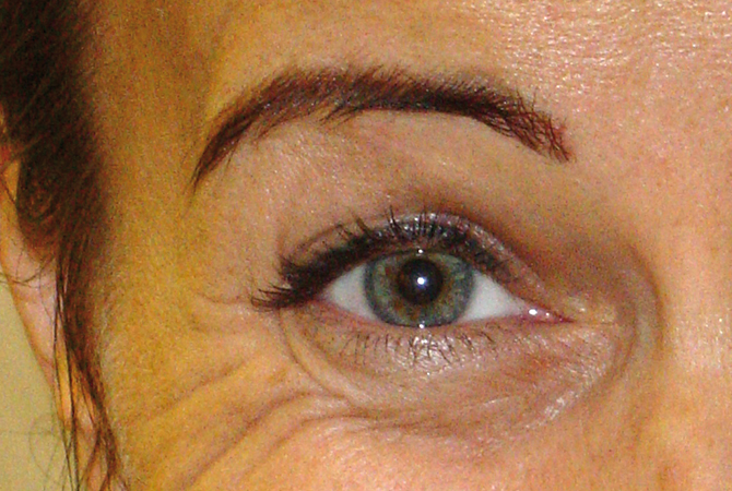 Botox treatment at the DRN Dermatology in Sopron
