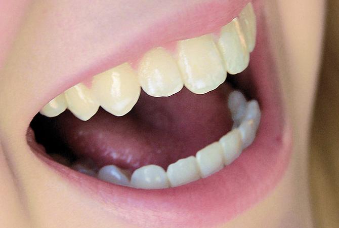 Zahnbleichen 1