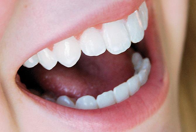 Zahnbleichen 2