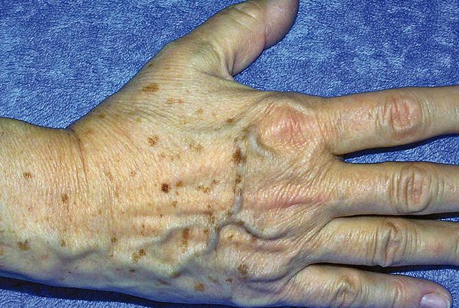 Behandlung der Hände 1