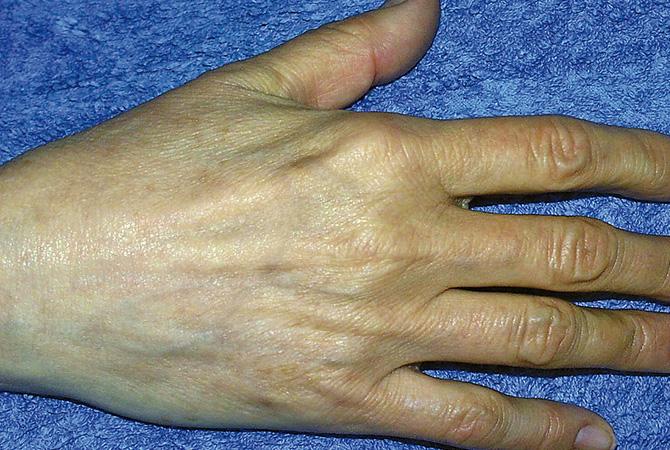 Behandlung der Hände 2