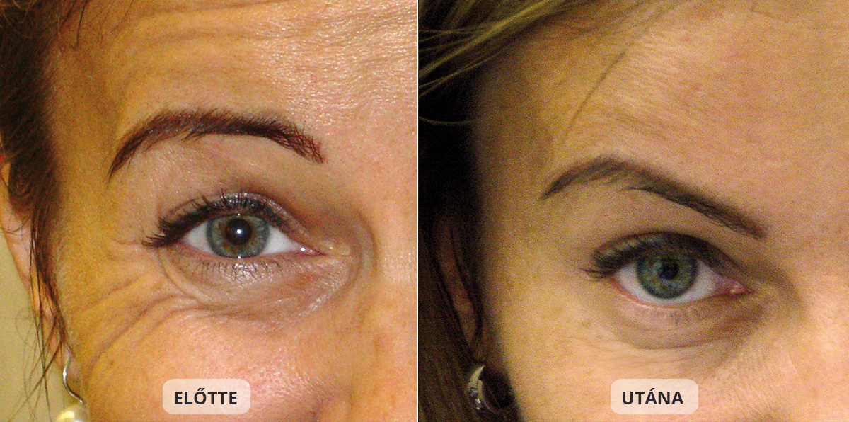 Botox treatment at the DRN Dermatology bevor-after Foto