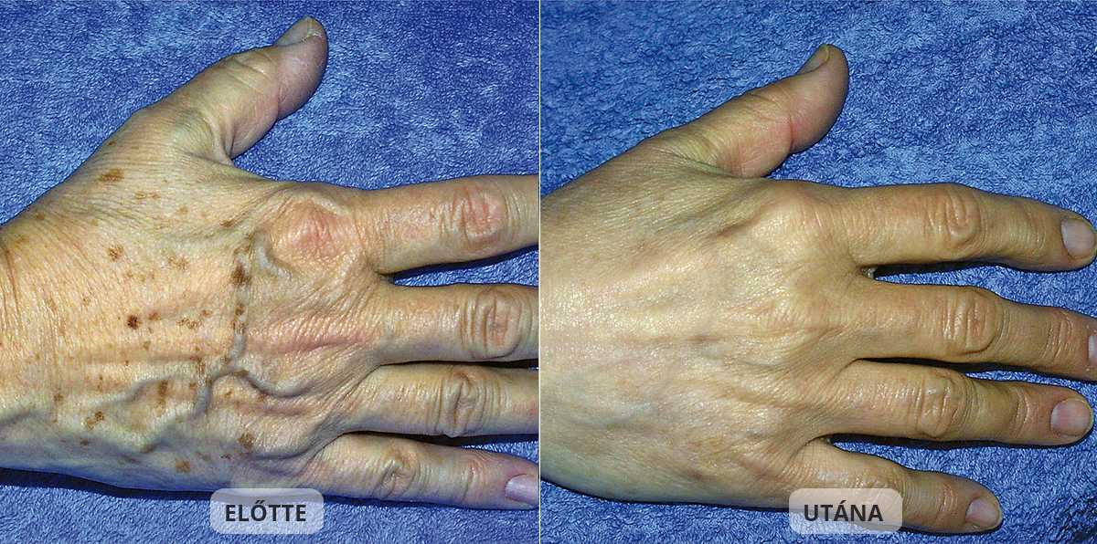Hand Rejuvenate with IPL therapy- DRN Sopron