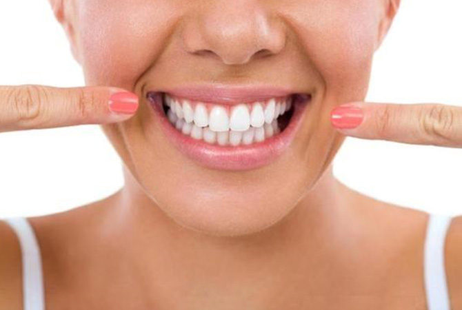 Tooth whitening at the DRN Dentistry
